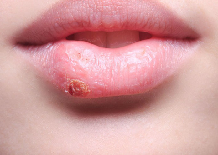 home Remedies to Treat Herpes