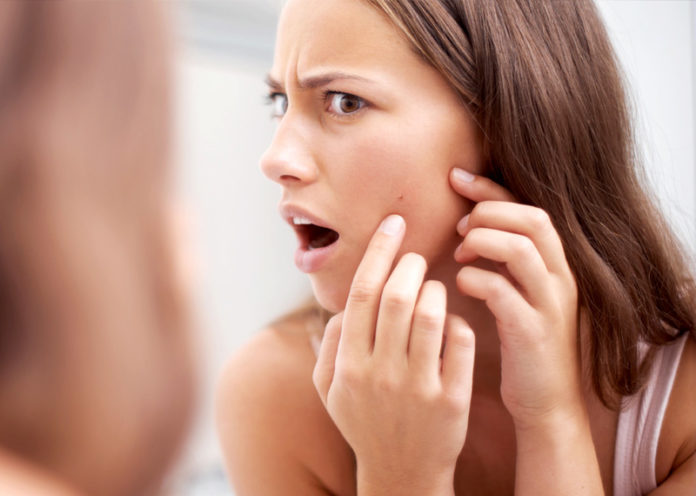 Cure Pimples
