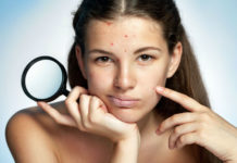 Foods To Reduce Acne