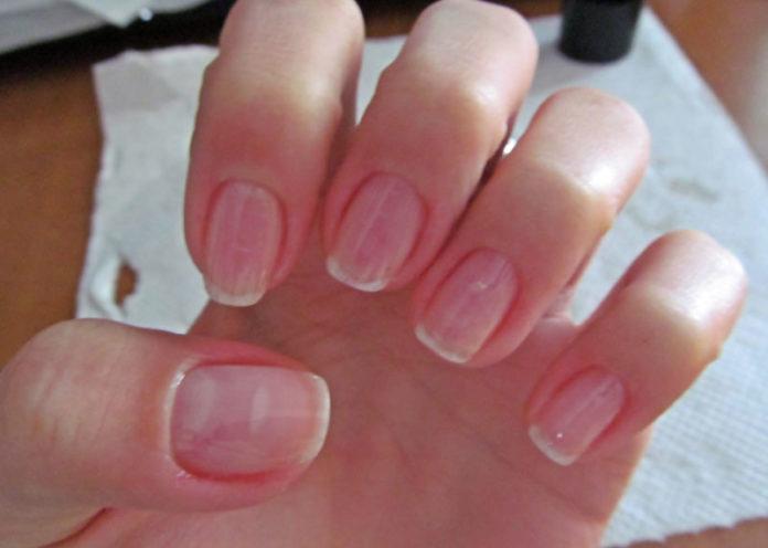 Moisturize Nails