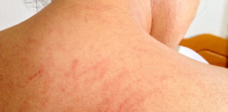 Home Remedies to Heal Skin Rashes