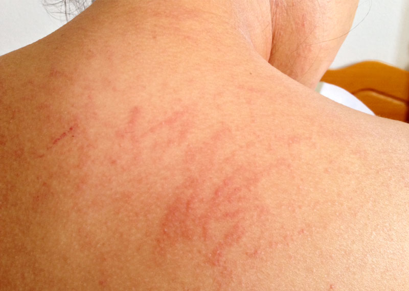 How to Heal Skin Rash from Home