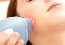 laser treatments for facial hair
