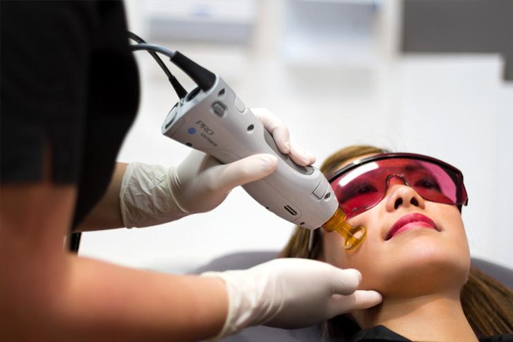 Alexandrite laser hair removal
