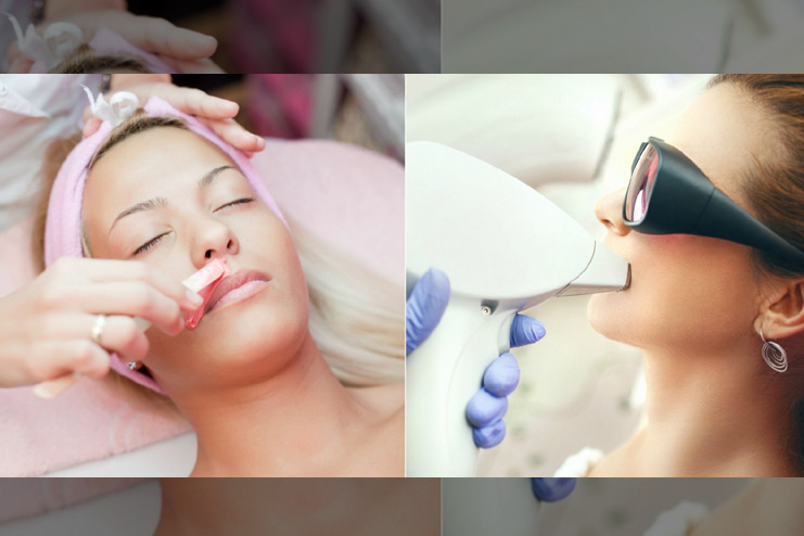 Why Laser Treatment