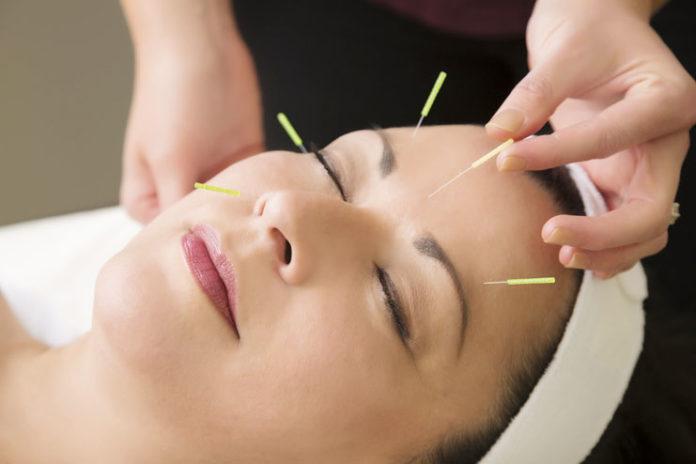 Acupuncture addresses