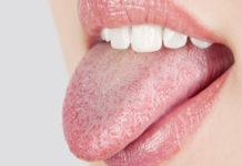 Furry Tongue