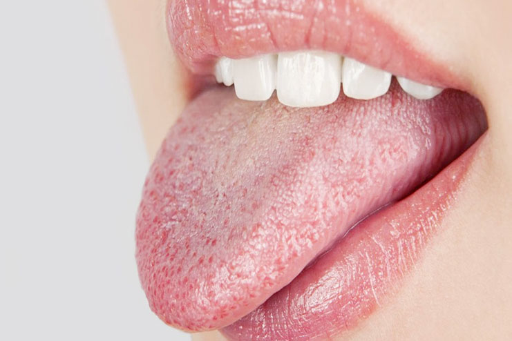 7 effective home remedies for furry tongue
