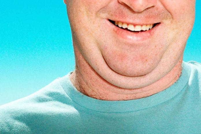 Unusual fat accumulations in the body