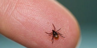 Home Remedies To Treat Lyme Disease