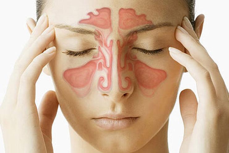 Bhringraj for Sinus Infection