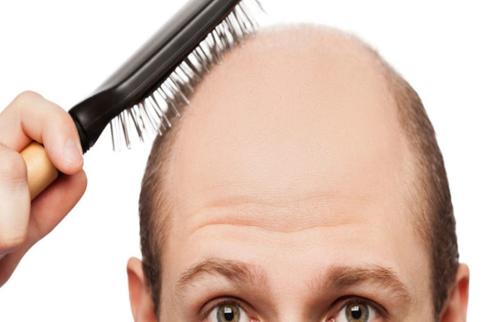 Home remedy for alopecia