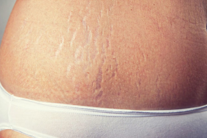 Treatment of Stretch Marks