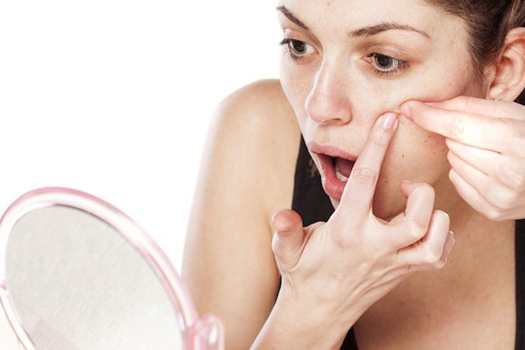 Pimple and Acne Treatment