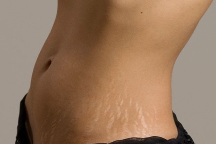 home remedy for stretch marks