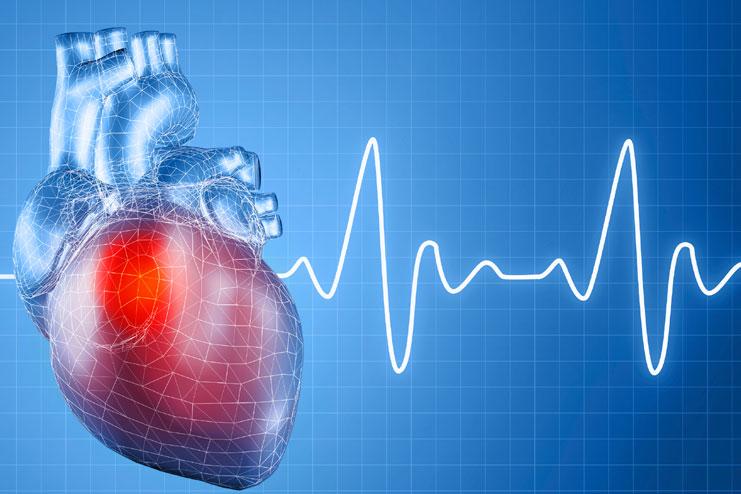 Cardiovascular Conditioning