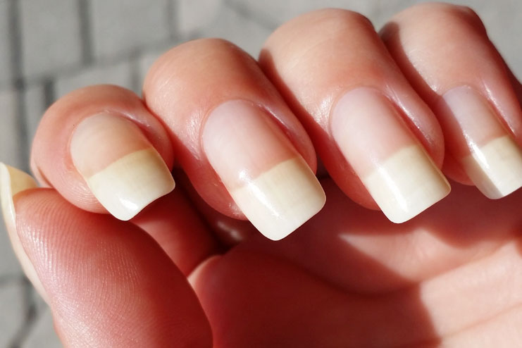 Your Nails Growth Will Increase
