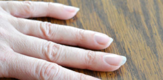 dry cuticles