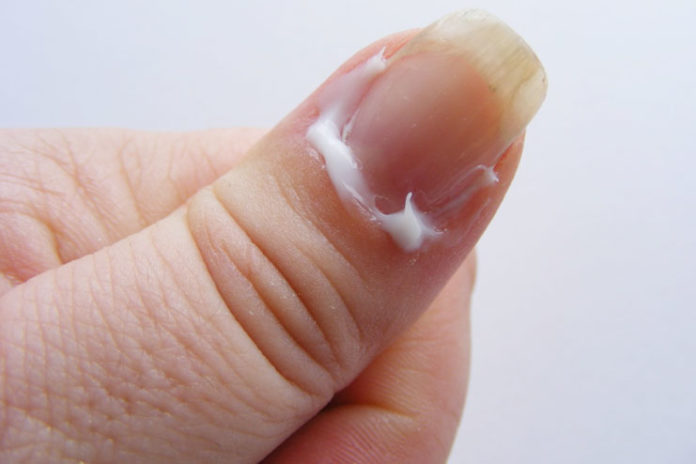 Moisturize Your Cuticles