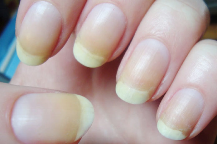 6 Wonderfully Amazing Remedies To Treat Yellow Fingernails