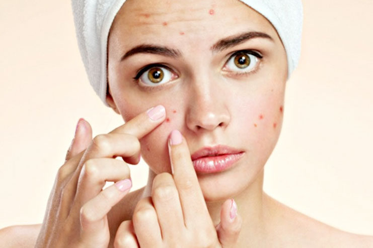 Preventing Acne and Pimples