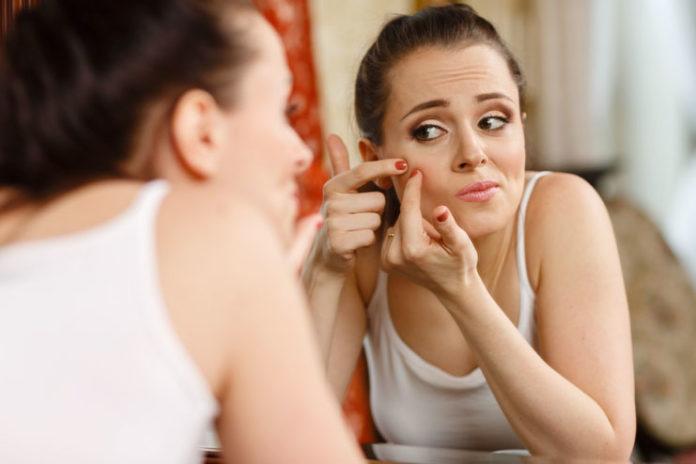 Reduces Acne