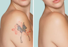 Remove Tattoo Naturally