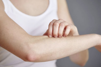 Home Remedies For Skin Rashes During Summer