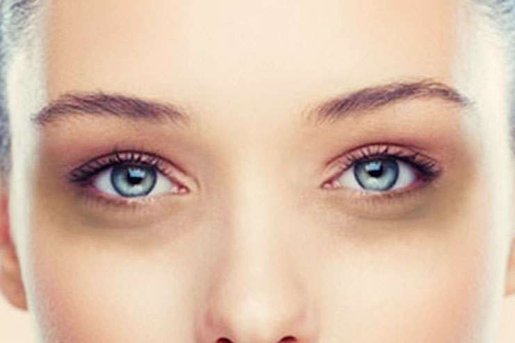 dark circles under the eye