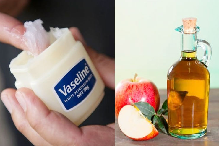 Apple Cider Vinegar And Vaseline