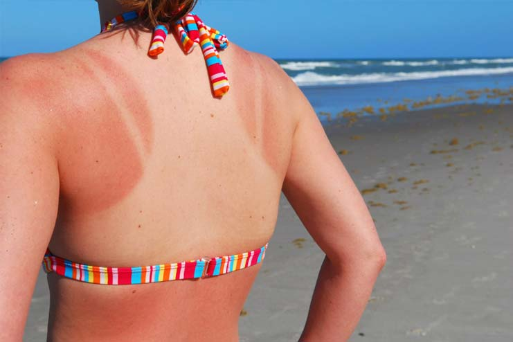 Cure Sunburn