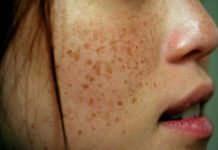 Treat Brown Spots