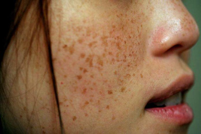Treat Brown Spots