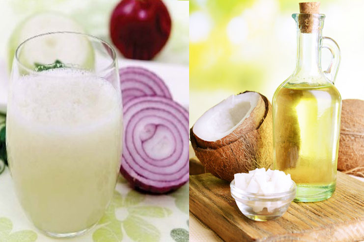 Onion Juice And Coconut Oil Pack