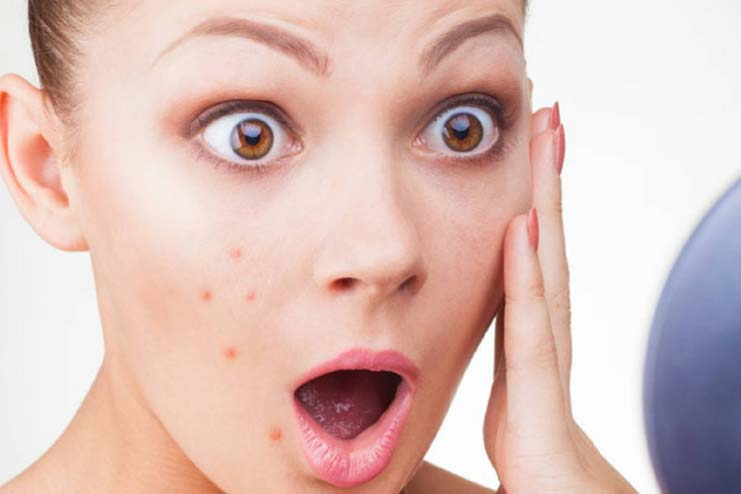 Sandalwood Remedy For Pimples