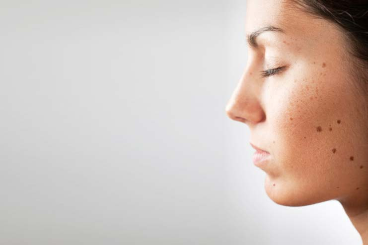 Sandalwood Remedy For Skin Spots