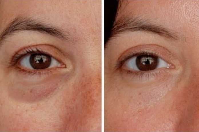 Rejuvenate tired eyes