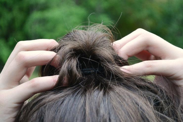 their hair fall