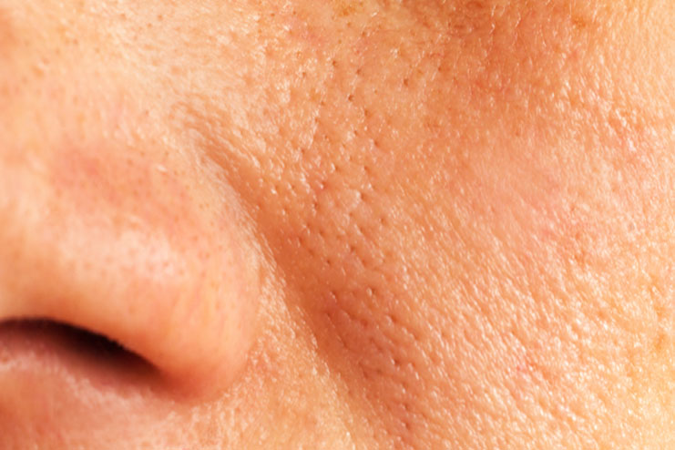 What is enlarged pores
