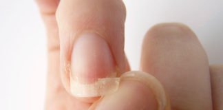 prevent your nails from breaking