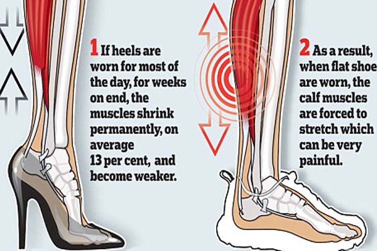 Shortening of achilles tendon