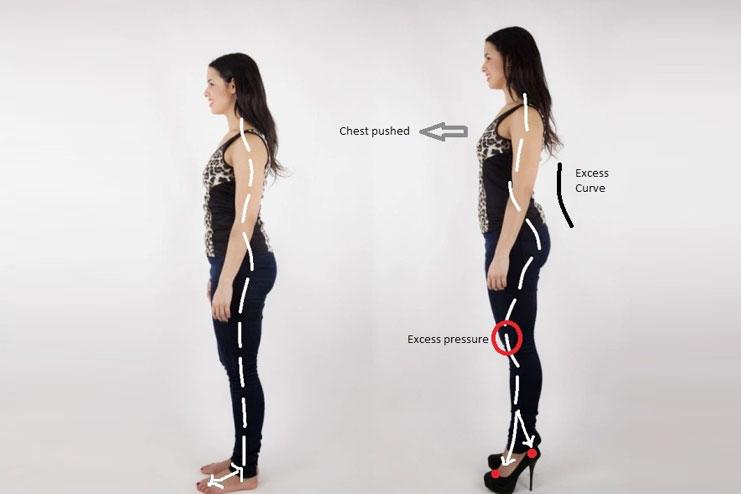 Awkward spinal curve