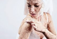 winter rashes